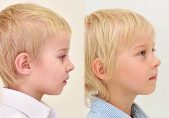 Odstranění jizvy u dítěte laserem FOTONA
