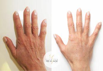 Fatgrafting - omlazení rukou