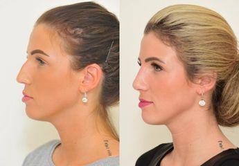 Operace nosu - hrbolatý nos