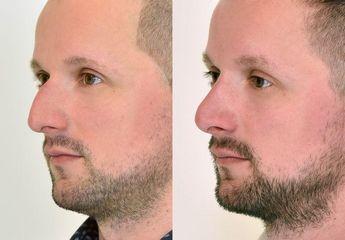 Operace nosu, muž