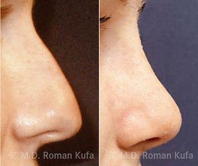 MUDr. Roman Kufa - Perfect Clinic