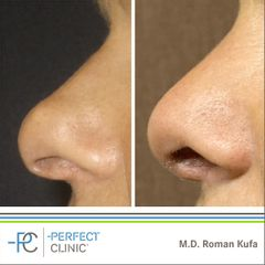 Plastika nosu (Rhinoplastika) - MUDr. Roman Kufa - Perfect Clinic