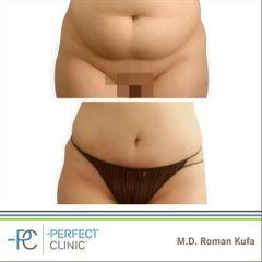 Abdominoplastika (Operace břicha) - MUDr. Roman Kufa - Perfect Clinic