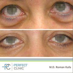 Operace očních víček (Blefaroplastika) - MUDr. Roman Kufa - Perfect Clinic