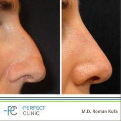 Plastika nosu (Rhinoplastika) -MUDr. Roman Kufa - Perfect Clinic
