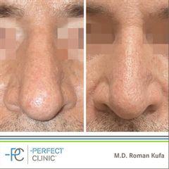 Rhinoplastika - MUDr. Roman Kufa - Perfect Clinic