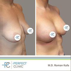 Zvětšení prsou - MUDr. Roman Kufa