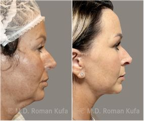 Facelift  - MUDr. Roman Kufa - Perfect Clinic