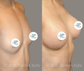 Zvětšení prsou - MUDr. Roman Kufa - Perfect Clinic
