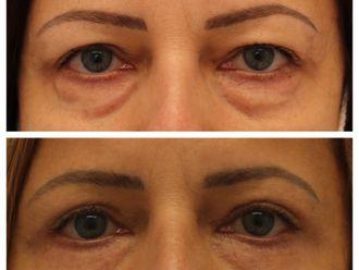Operace očních víček - 739864