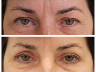 Operace očních víček - 739868