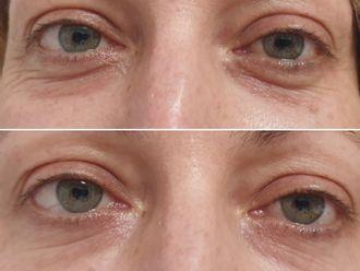 Odstranění kruhů pod očima - 740457