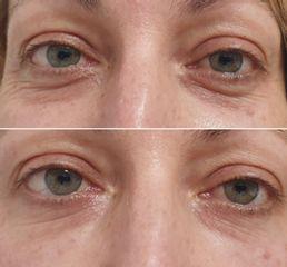 Kruhy pod očima výplně HA- Plastická a estetická chirurgie Poděbrady - prim. MUDr. Veliký