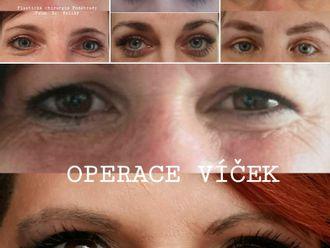 Operace očních víček - 740458