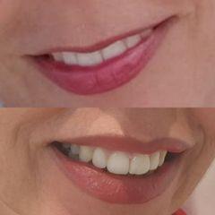 Zvětšení rtů - kyselina hyaluronová - Plastická a estetická chirurgie Poděbrady - prim. MUDr. Veliký
