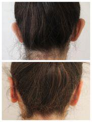 Operace uší - prim. MUDr. Veliký
