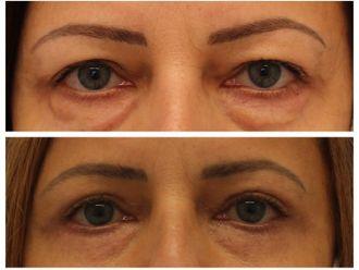 Operace očních víček - 741188