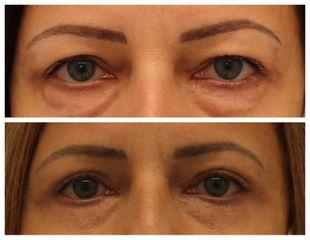 Operace očních víček - prim. MUDr. Veliký