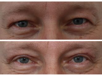 Operace očních víček - 788916