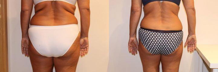 Laserová liposukce,  po 12 kúrách, úbytek 10 cm