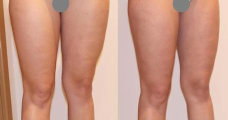Liposukce a odstranění celulitidy na stehnech, zpevnění pokožky úbytek 2cm 1 kúra