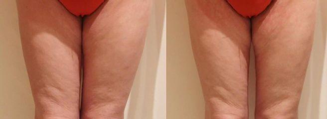 Bezbolestná liposukce a odstranění celulitidy na stehnech a hýždích, zpevnění pokožky 1 kúra.