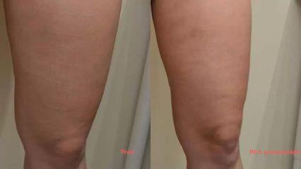 Bezbolestná liposukce, hubnutí nohou po třech procedúrách, úbytek 3 cm.