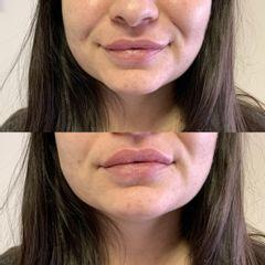 Zvětšení rtů kyselinou hyaluronovou - Beauty Studio Dana