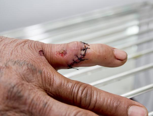 Traumatická poranění ruky