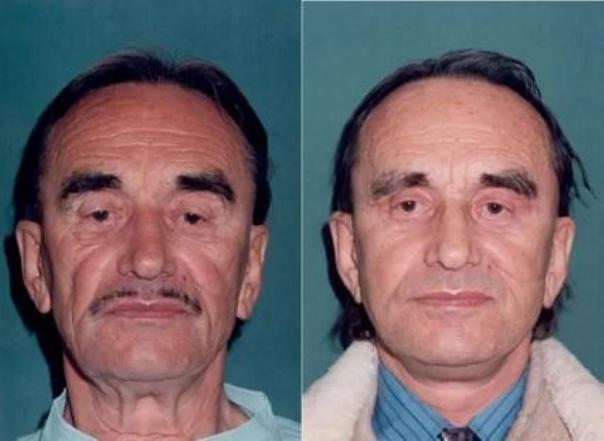 Fotky před a po faceliftu (foto: soukromý archiv lékaře)