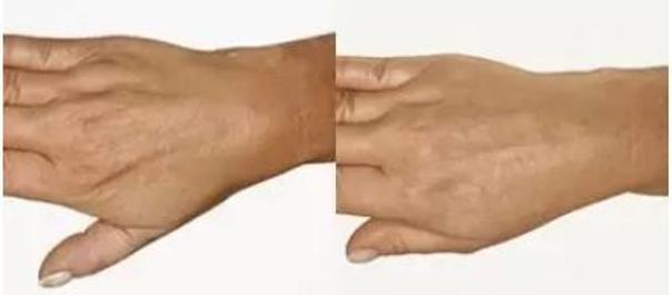Omlazení hřebtů ruky. Fotky před a po mezoterapii. (foto: soukromý archiv kliniky)
