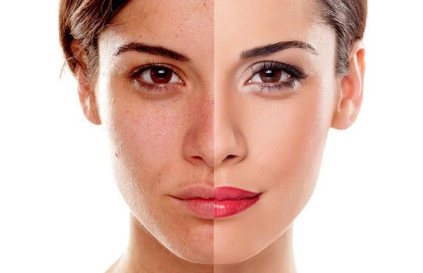 Co pomáhá na akné: pleťová maska na akné