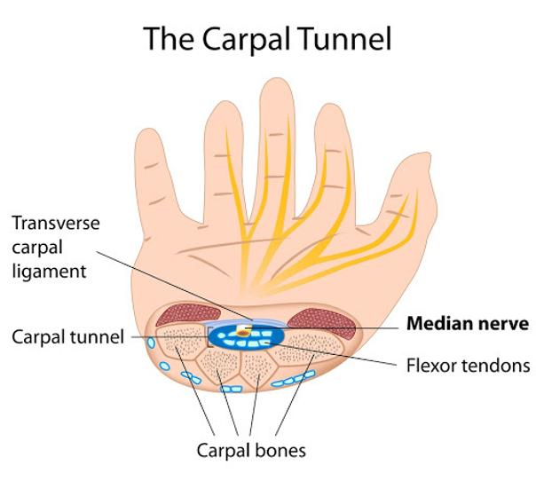Příznaky karpálního tunelu