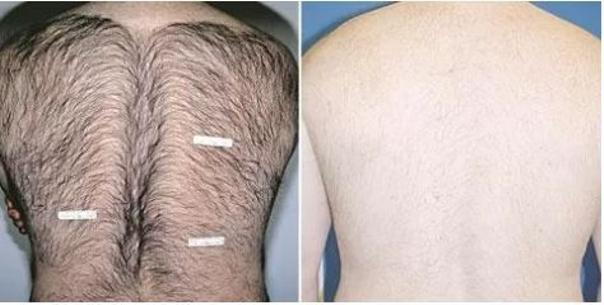 Laserová epilace zad. Foto před a po epilaci. (soukromý archiv kliniky)