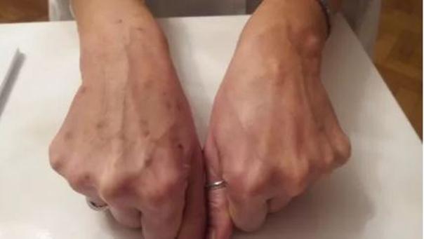 Fotka po aplikaci mezonití, porovnání vlevo před ošetřením, vpravo po ošetření (foto: sourkomý archiv lékaře)