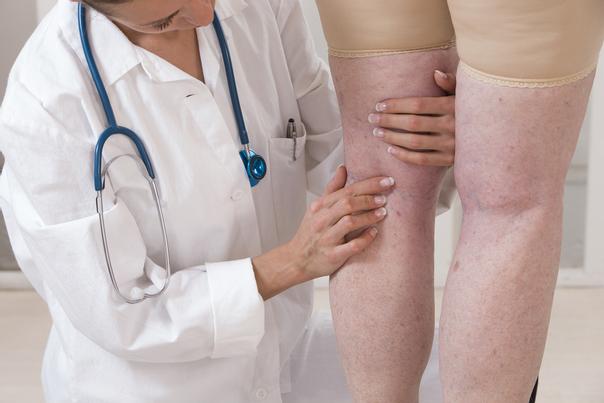 Co je sklerotizace (skleroterapie)?