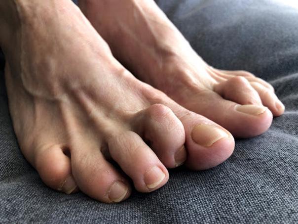 Příčiny vzniku kladívkového prstu
