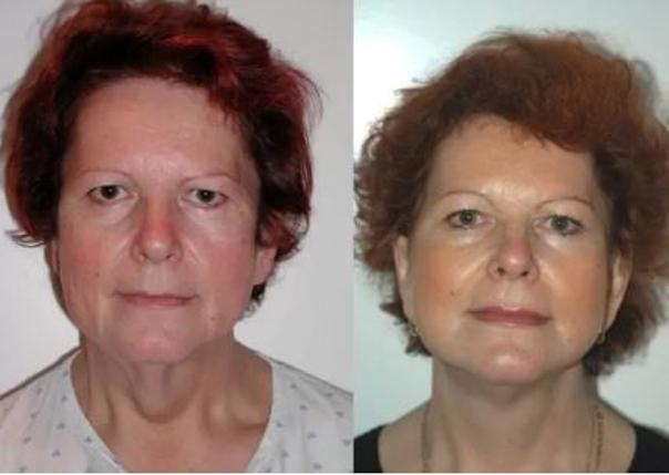 Fotky před a po faceliftu obličeje. (foto: soukromý archiv lékaře)
