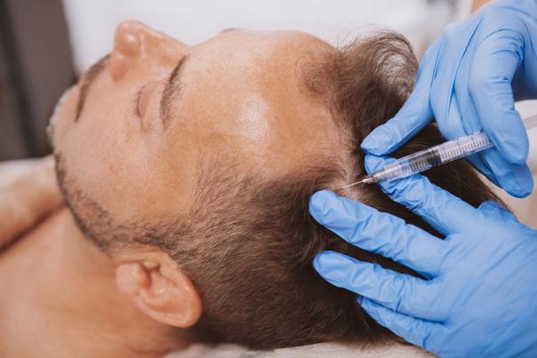 Jak probíhá zotavení po léčbě vypadávání vlasů pomocí plazmaterapie?
