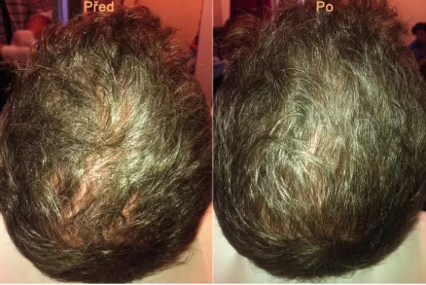 Co je léčba vypadávání vlasů pomocí plazmaterapie?