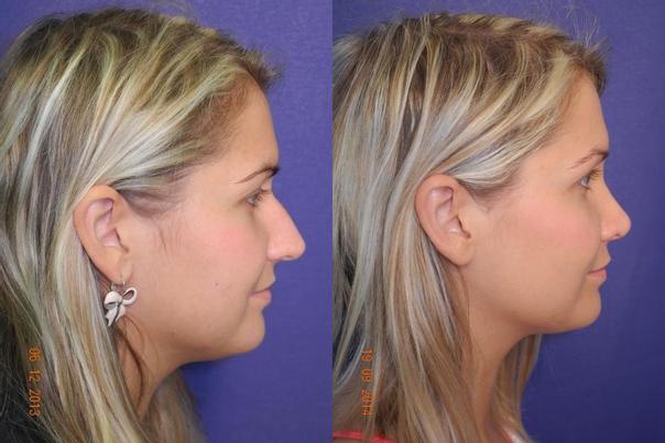 Před/po operace nosu