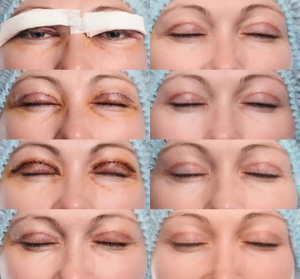 Komplikace plastiky očních víček
