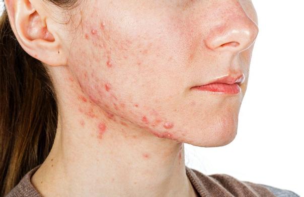 Co je to akné?