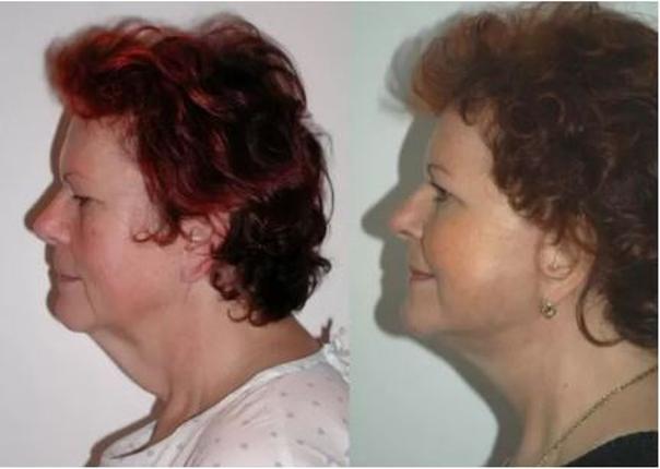 Fotky před a po faceliftu z profilu (foto: soukromý archiv lékaře)