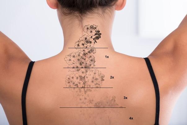 Před odstraněním tetování