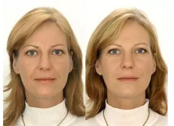 Fotky před a po omlazení obličeje mezoterapií. (foto: soukromý archiv kliniky)