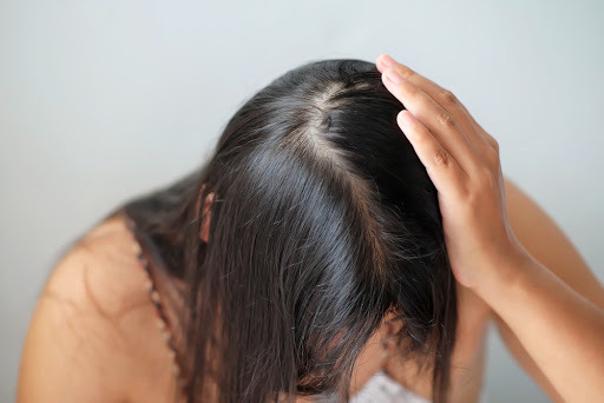 Akné ve vlasech a ostatní místa