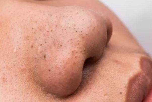 Nejslabší forma akné: černé tečky. Poradí si s nimi pleťová maska na akné, peeling.