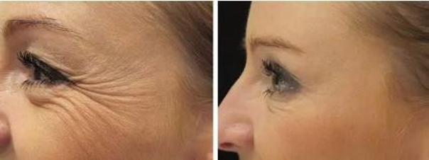 Fotky před a po aplikaci botulotoxinu