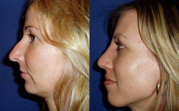 Před/po operace nosa